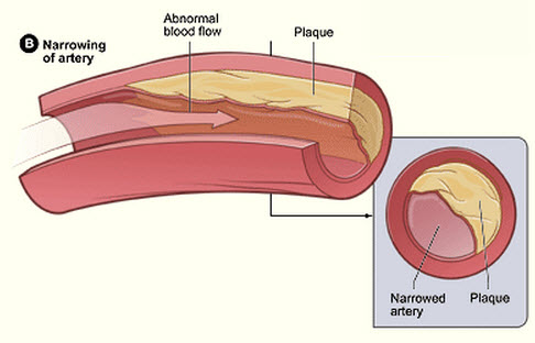 Non-invasive, nanoparticle method for identifying atherosclerosis plaques