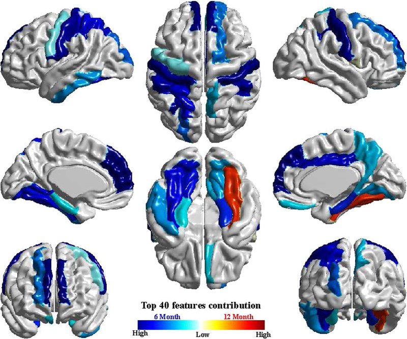 Mris Predict Which High Risk Babies >> Mri Algorithm Predict Autism Before Behavioral Symptoms Appear